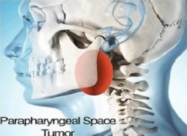 Parapharyngeal Tumour Surgery